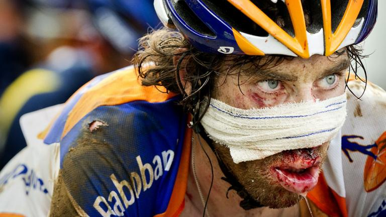 Battered and bruised